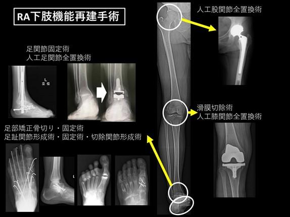 各部位におけるRA機能再建手術